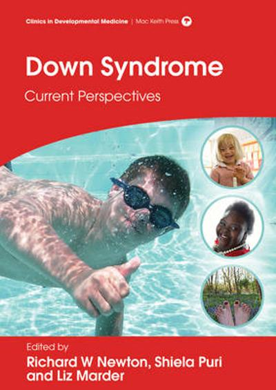 Down Syndrome - Richard W. Newton