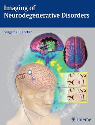 Imaging of Neurodegenerative Disorders - Kanekar, Sangam
