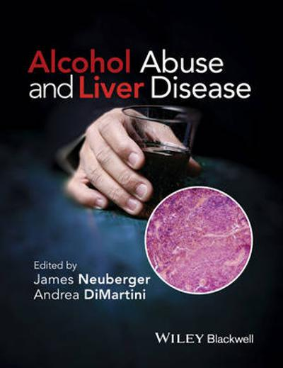Alcohol Abuse and Liver Disease - Andrea DiMartini
