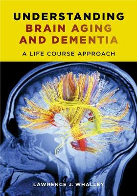 Understanding Brain Aging and Dementia - Lawrence J. Whalley