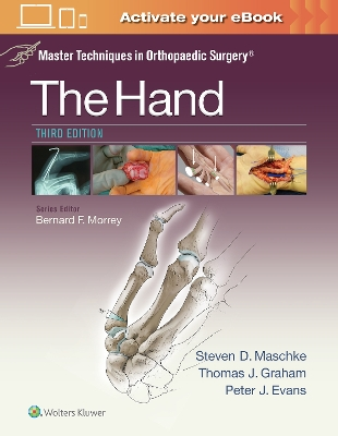 Master Techniques in Orthopaedic Surgery: The Hand - Thomas J. Graham