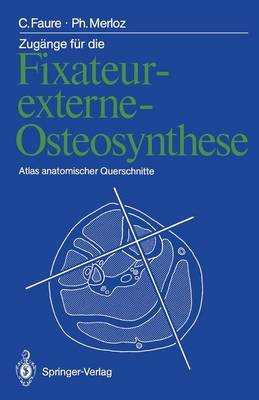Zug nge F r Die Fixateur-Externe-Osteosynthese - Claude Faure