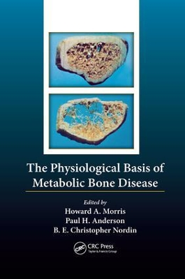 The Physiological Basis of Metabolic Bone Disease - Borje Edgar Christopher Nordin