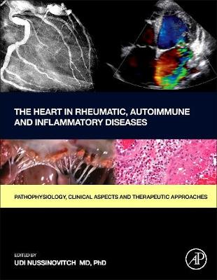 The Heart in Rheumatic, Autoimmune and Inflammatory Diseases - Udi Nussinovitch