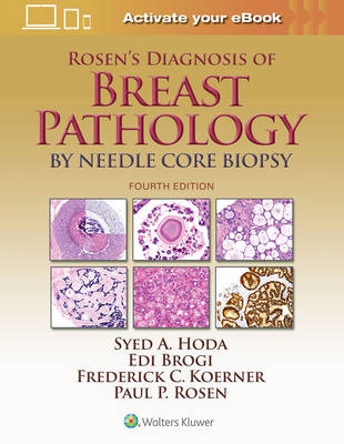 Rosen's Diagnosis of Breast Pathology by Needle Core Biopsy - Syed A. Hoda