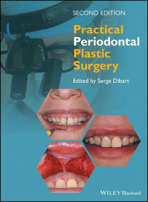Practical Periodontal Plastic Surgery - Serge Dibart