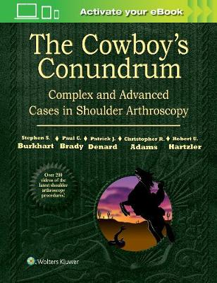 The Cowboy's Conundrum: Complex and Advanced Cases in Shoulder Arthroscopy - Stephen S. Burkhart
