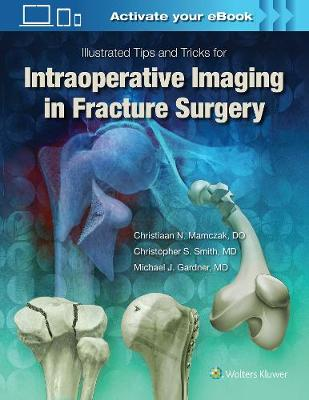Illustrated Tips and Tricks for Intraoperative Imaging in Fracture Surgery - Michael J. Gardner