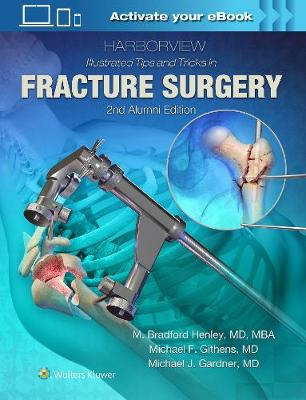 Harborview Illustrated Tips and Tricks in Fracture Surgery - M. Henley