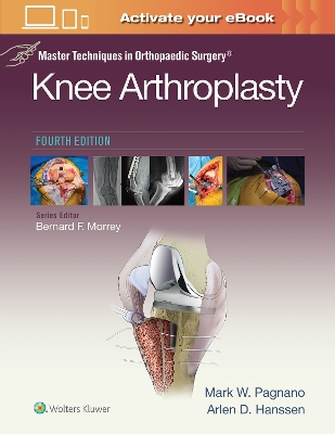 Master Techniques in Orthopedic Surgery: Knee Arthroplasty - Mark W. Pagnano