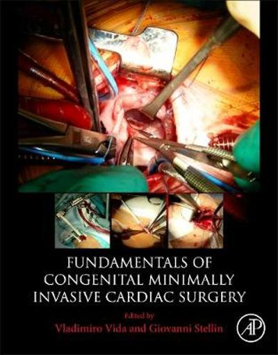 Fundamentals of Congenital Minimally Invasive Cardiac Surgery - Vida