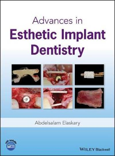 Advances in Esthetic Implant Dentistry - Abd El Salam El Askary