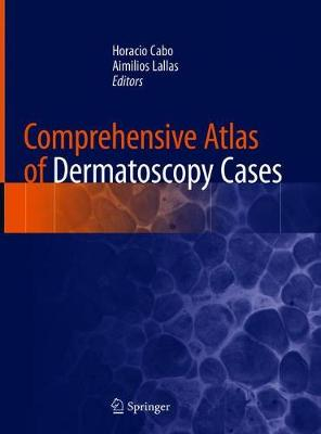 Comprehensive Atlas of Dermatoscopy Cases - Horacio Cabo