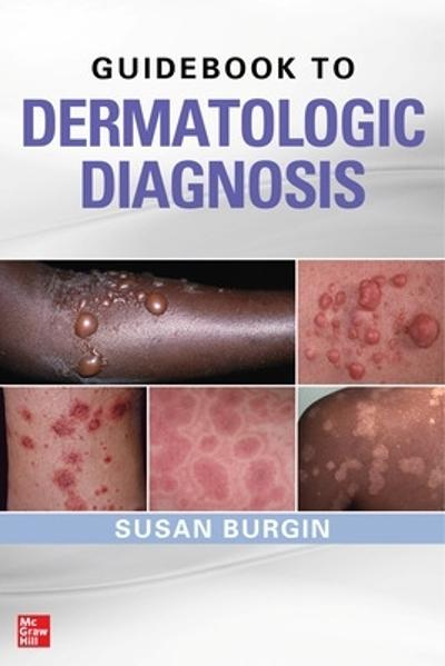 Guidebook to Dermatologic Diagnosis - Susan Burgin