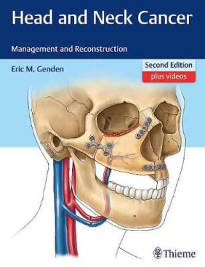 Head and Neck Cancer - Eric M. Genden