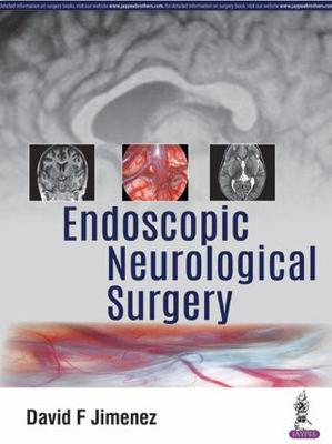 Endoscopic Neurological Surgery - David F Jimenez