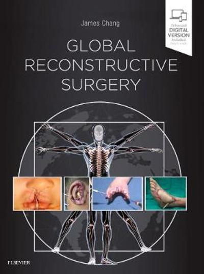 Global Reconstructive Surgery - James Chang