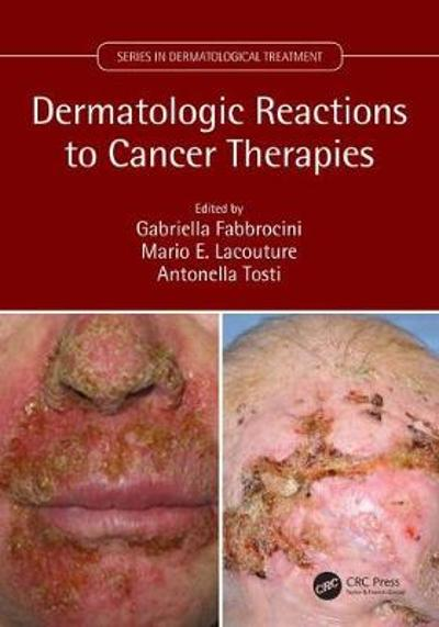 Dermatologic Reactions to Cancer Therapies - Gabriella Fabbrocini