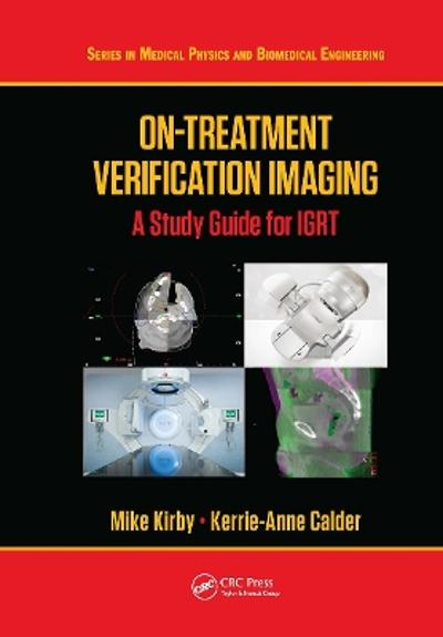 On-Treatment Verification Imaging - Mike Kirby