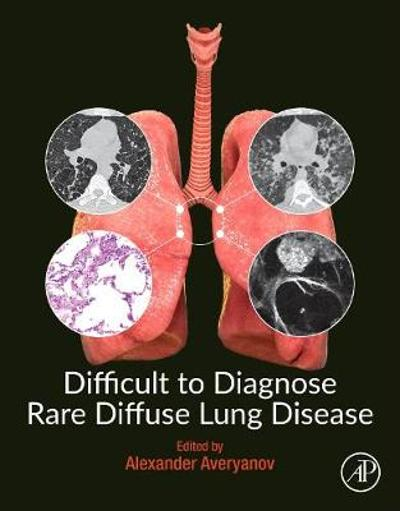 Difficult to Diagnose Rare Diffuse Lung Disease - Alexander V. Averyanov