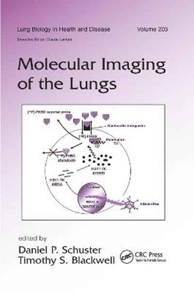 Molecular Imaging of the Lungs - Daniel Schuster
