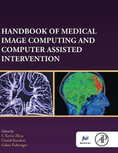 Handbook of Medical Image Computing and Computer Assisted Intervention - S. Kevin Zhou