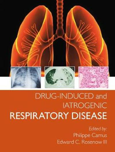 Drug-induced and Iatrogenic Respiratory Disease - Phillipe Camus