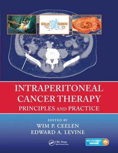 Intraperitoneal Cancer Therapy - Wim P. Ceelen