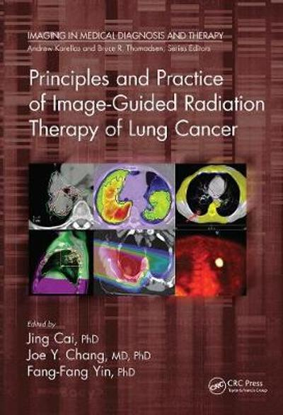Principles and Practice of Image-Guided Radiation Therapy of Lung Cancer - Jing Cai
