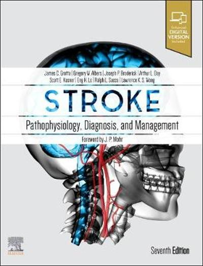 Stroke - James C. Grotta