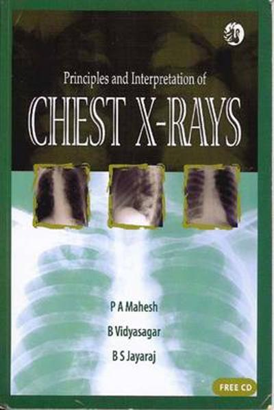Principles and Interpretation of Chest X-rays - P A Mahesh