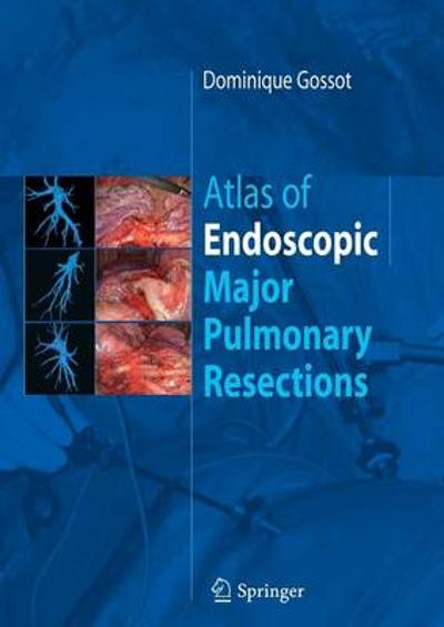 Atlas of endoscopic major pulmonary resections - Dominique Gossot