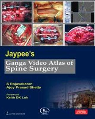 Jaypee's Ganga Video Atlas of Spine Surgery - S. Rajasekaran
