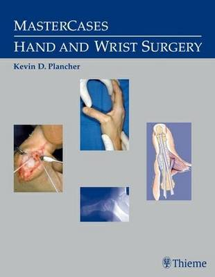 MasterCases in Hand and Wrist Surgery - Kevin D. Plancher
