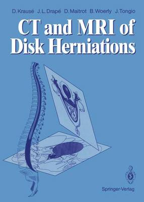 CT and MRI of Disk Herniations - Denis Krause