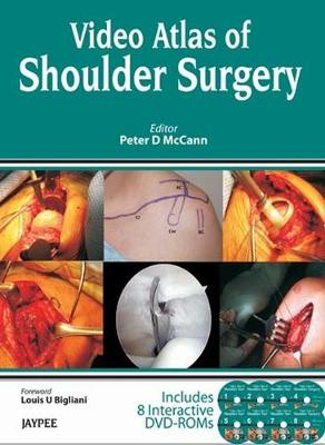 Video Atlas of Shoulder Surgery - Peter D. McCann