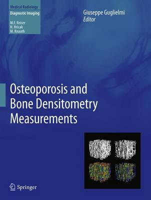 Osteoporosis and Bone Densitometry Measurements - Giuseppe Guglielmi