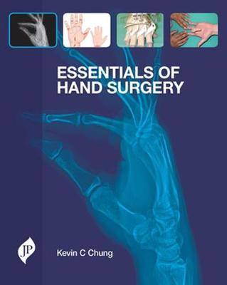 Essentials of Hand Surgery - Kevin C. Chung